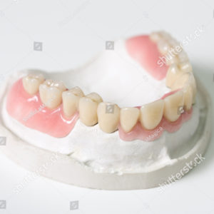 stock-photo-a-prosthesis-saddle-in-a-dental-laboratory-346175246